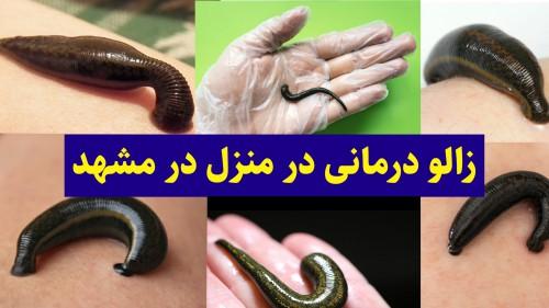 زالو درمانی در منزل مشهد